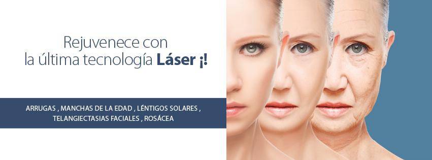 Fotorrejuvenecimiento Láser con un 20% dto.!!