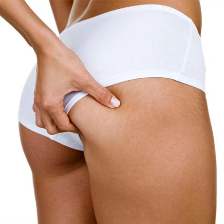 Bodyshock altamente eficaz contra la celulitis!!