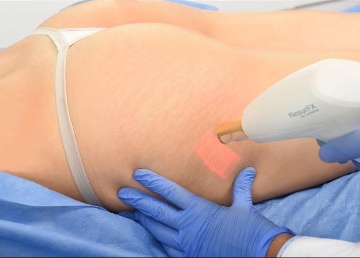 ResurFx: ¡lo último en tecnología láser para tratar las estrías!