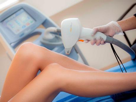 ¿Cuántas sesiones de depilación láser son necesarias para eliminar el vello?