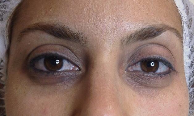 ¿Conoces los tratamientos más eficaces para eliminar las ojeras?