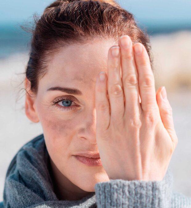 Manchas en la piel… ¿sabes como tratarlas?